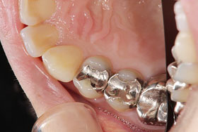 治療前の虫歯