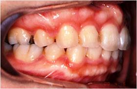 出っ歯の治療後