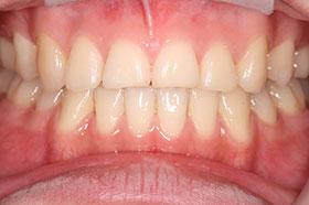 開咬の治療後