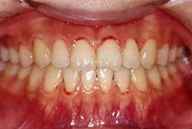 すきっ歯の治療後