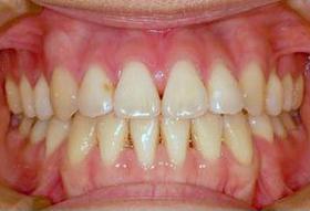 八重歯の治療後