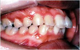 出っ歯の治療前