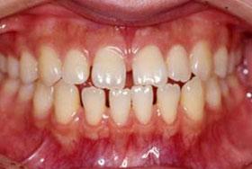 すきっ歯の治療前