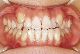 八重歯の治療前