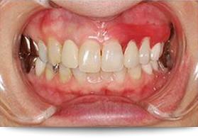 治療後の虫歯