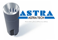 Astra Tech Implant