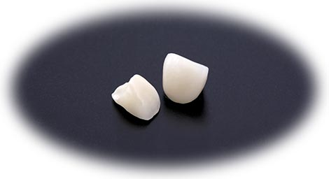 可能なかぎり「白い歯」で対応します